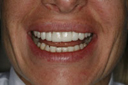 cosmetic_dentistry_1_small