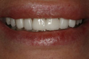 cosmetic_dentistry_2_small