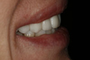 cosmetic_dentistry_3_small