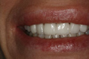 cosmetic_dentistry_4_small