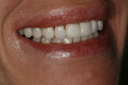 cosmetic_dentistry_5_small