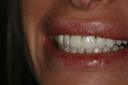 cosmetic_dentistry_6_small