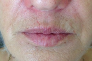 pdo-smokers-lines-before – Guildford Dental Practice