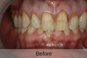 restorative_treatment_before_small