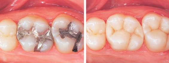 amalgam filling replaced with white filling